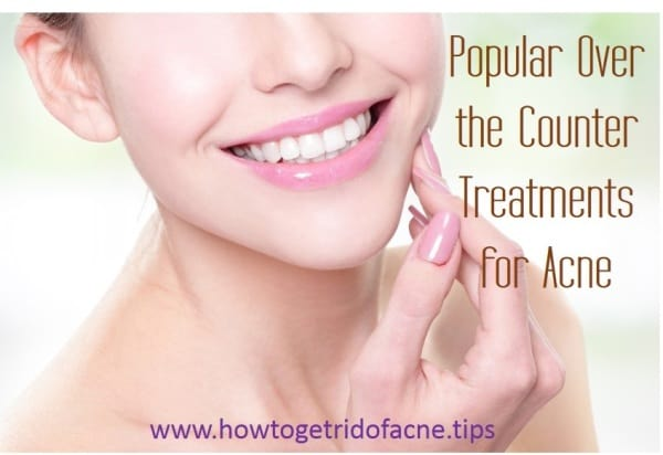 popular over the counter treatments for acne