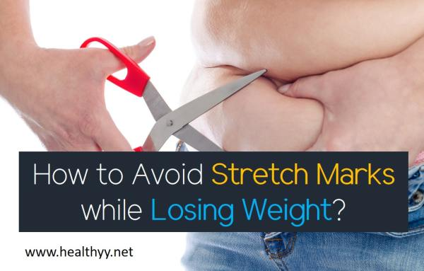 How to Avoid Stretch Marks while Losing Weight