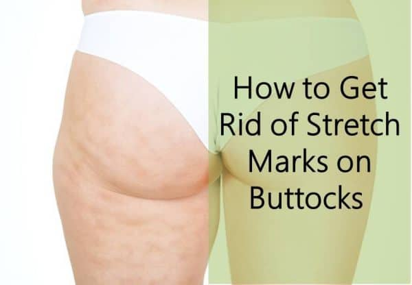 How to Get Ricd of Stretch Marks on Buttocks