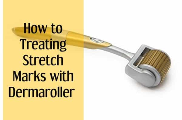 How to Treating Stretch Marks with Dermaroller