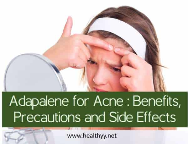 Adapalene for Acne Benefits, Precautions and Side Effects