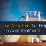 Can a Dairy Free Diet Help in Acne Treatment