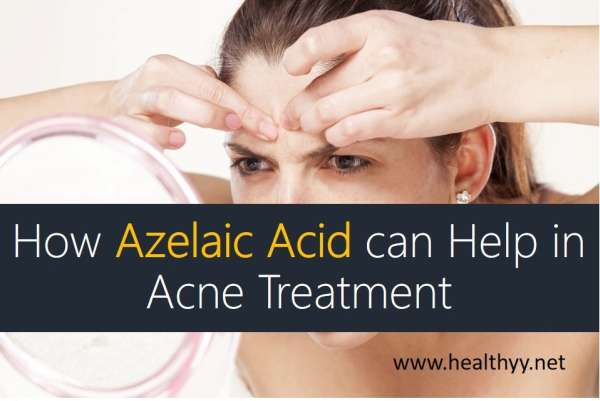 How Azelaic Acid can Help in Acne Treatment