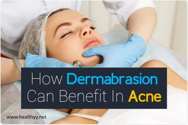 How Dermabrasion Can Benefit In Acne
