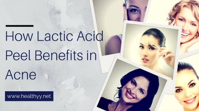 How Lactic Acid Peel Benefits in Acne