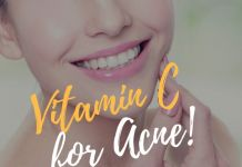 Vitamin C for Acne!
