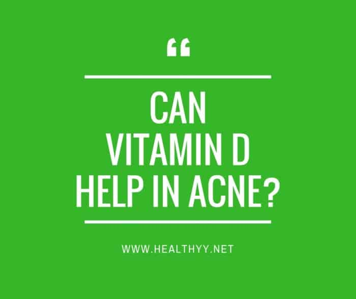 can Vitamin D help in Acne_