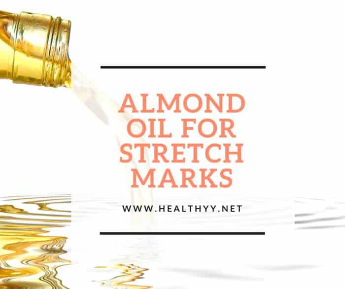 almond oil for stretch marks